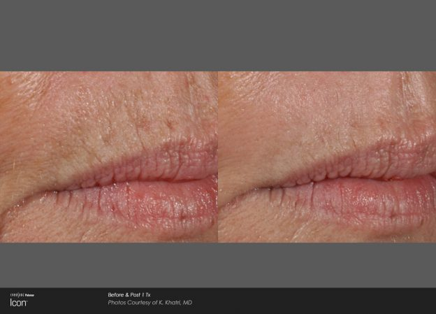 bloom-Skin-Resurfacing-Before-&-After-Photo-3