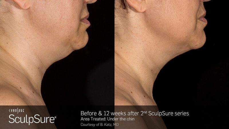 bloom-sculpsure-doublechin
