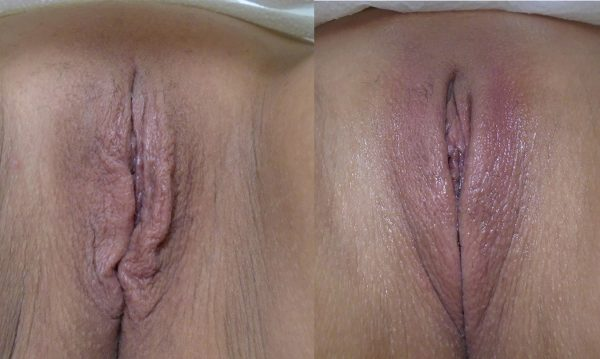 bloomobgyn-thermiva-vaginal-rejuvenation-1