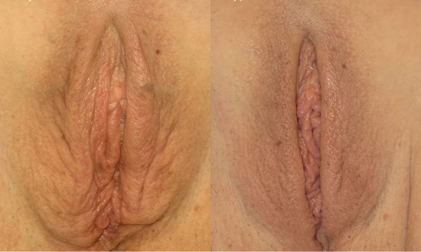 bloomobgyn-thermiva-vaginal-rejuvenation-2